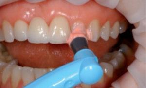 Больно ли снимать зубной камень
