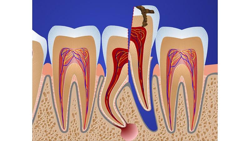 Варианты экстракции зуба мудрости