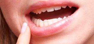 Вопросы про удаление зуба мудрости