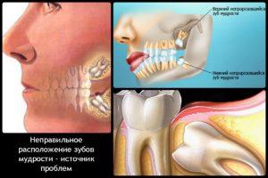 Вопросы про удаление зубов мудрости