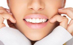 Хочу красивые зубы