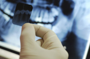 Почему проводят удаление зуба мудрости