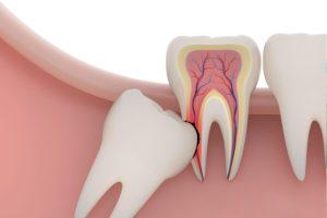 Растёт зуб мудрости симптомы роста и как снять болевые ощущения