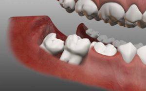 Режется зуб мудрости - как обезболить и избежать осложнений