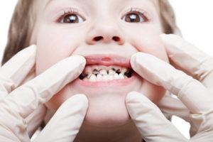 Обезболивающие при зубной боли