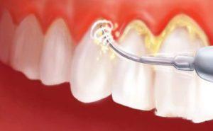 Удаление зубного камня - подробности и методы
