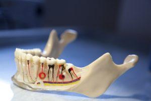 Болит зуб после удаления нерва, как быть