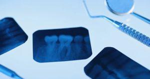 Виды рентгена зуба