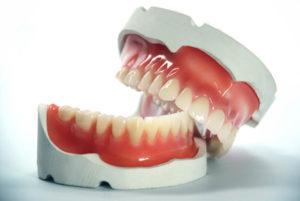 Гранулема зуба, причины, симптомы, методы лечения