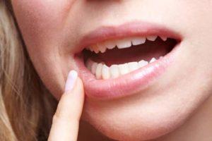 Другие проблемы с зубами