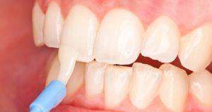 Зачем и кому делать фторирование зубов