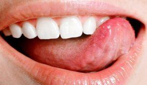 Как и чем лучше лечить стоматит во рту