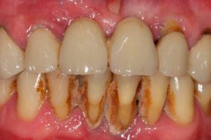 Как увидеть зубной камень и чем он опасен