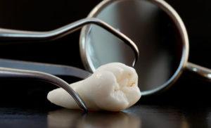 Как удаляют корень зуба и можно ли этого избежать
