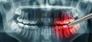 Когда необходимо делать рентген зуба