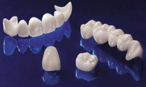 Коронка на зуб описание разновидностей, какие зубные коронки выбрать