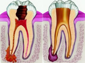 Периодонтит, формы периодонтита, как проявляется и чем его лечить