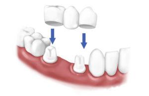 По площади покрытия зубов