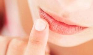 Причины и симптомы болезней полости рта