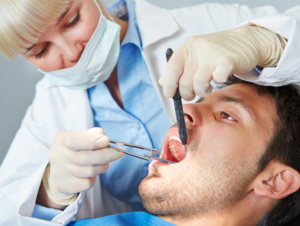 Причины образования зубных камней