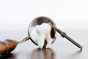 Процедуры после удаления зуба
