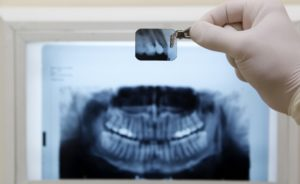 Симптомы зубной гранулемы