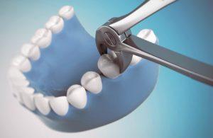 Удаление зуба - как происходит, чего ожидать и как избежать осложнений