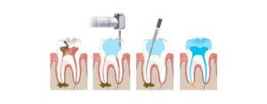 Что значит удаление нерва зуба