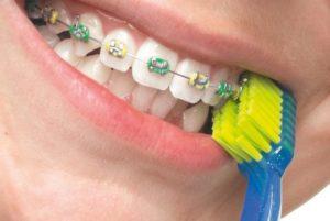 Зубная щетка для тех, кто носит брекеты