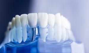 Зубные импланты, их преимущества, как устанавливают имплант зуба