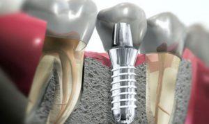 Имплантация зубов часто задаваемые вопросы