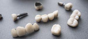 Как подбирают вид вставных зубов
