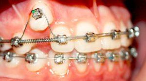 Методы ортодонтического лечения