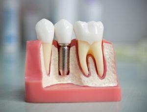 Основные разновидности имплантации зубов