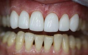 Особенности реставрации зубов винирами