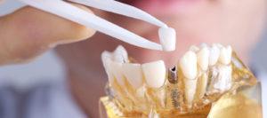Почему зубные импланты
