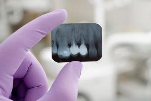 Варианты лечения флюса зуба