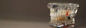 Зубной техник – чем он занимается и что требуется от специалиста