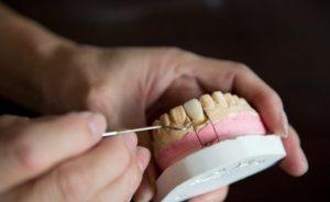 Как зуб удерживается в кости