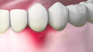 Как удалить гной из десны у корня зуба