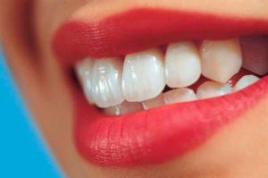 Наращивание зубов виды, преимущества и этапы