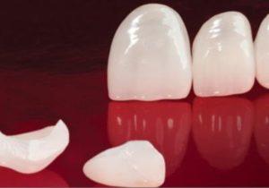 Непрямое восстановление зуба