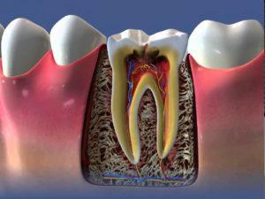 Пульпа зуба - что необходимо знать, чтобы избежать заболеваний