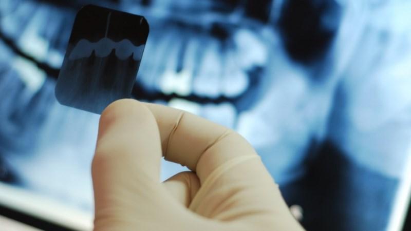 Пульпит зубов - формы, симптомы, диагностика