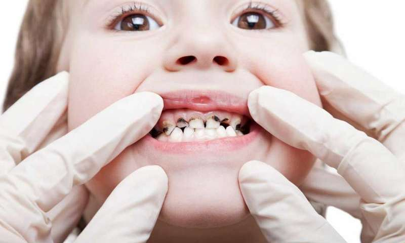 Смена молочного зубного ряда на постоянный