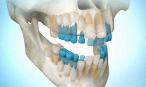 Строение зубов верхней челюсти