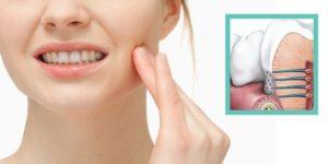 Уход за полостью рта после установки