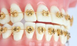Скобы для зубов – какие выбрать, как ухаживать за брекетами