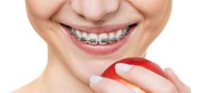 Сколько носят брекеты, какие факторы влияют на срок выравнивания зубов