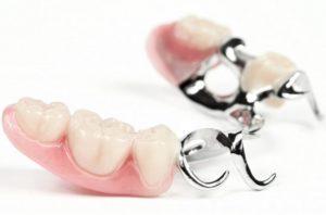 Бюгельное протезирование зубов что это такое